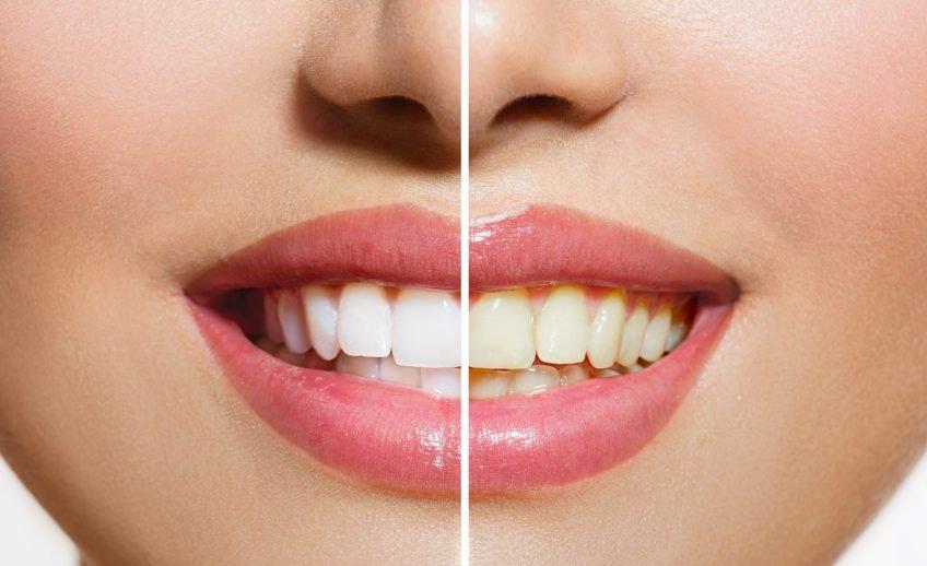 foto tractament blanqujament dental