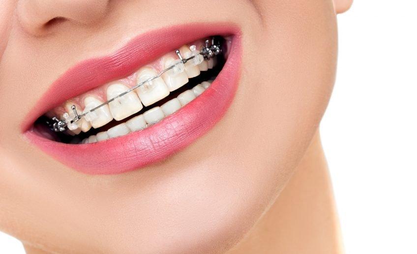 ortodoncia clínica dental anfruns