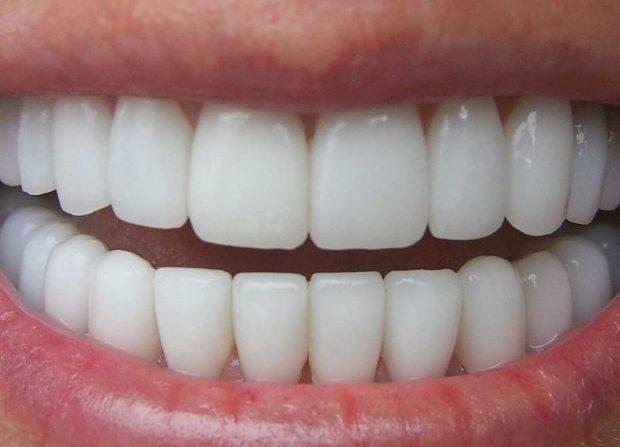 fundes dentals